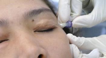 Carboxiterapia no tratamento de olheiras