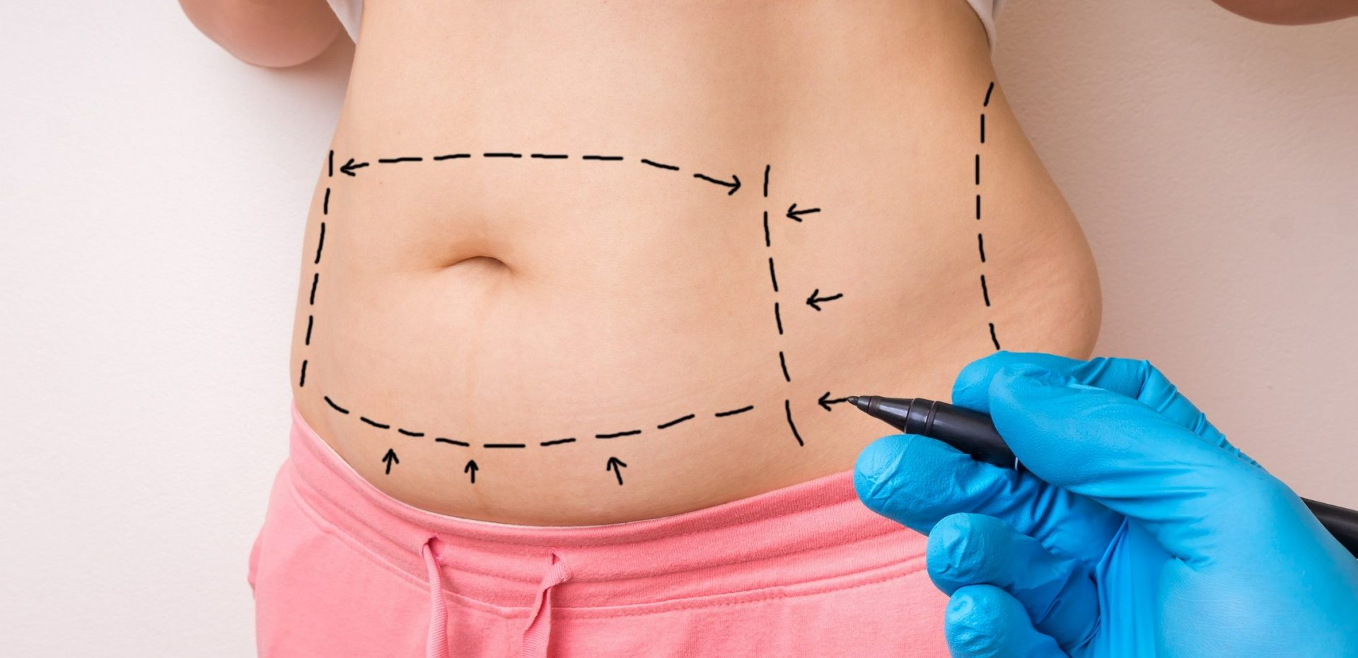 ,tummy tuck surgery